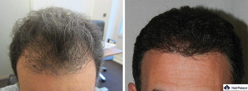Haartransplantation vorher nachher - Albert