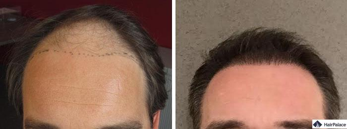 Haartransplantation vorher nachher - Bruno