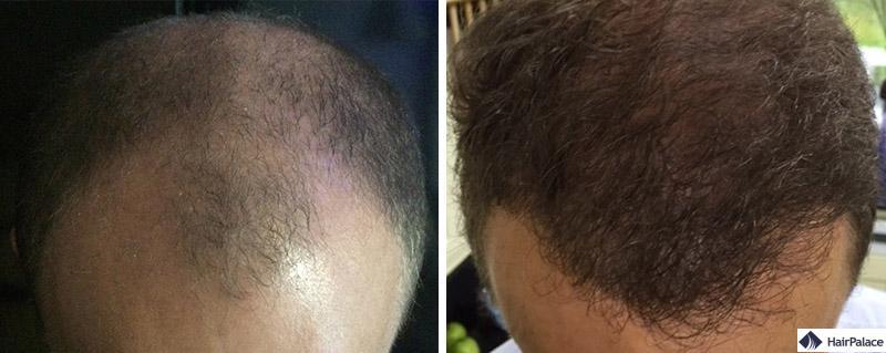 Haartransplantation vorher nachher - Chris