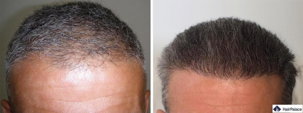 Haartransplantation vorher nachher - Gérard