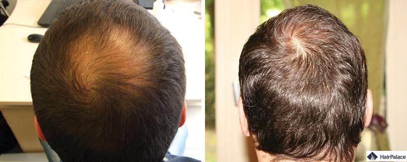 Haartransplantation vorher nachher - Charles