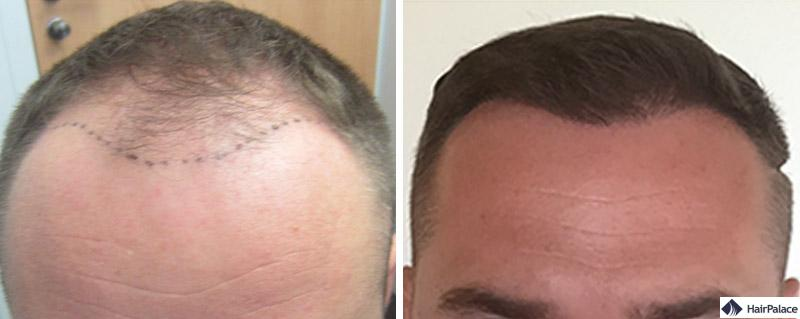 Haartransplantation vorher nachher - Pavel