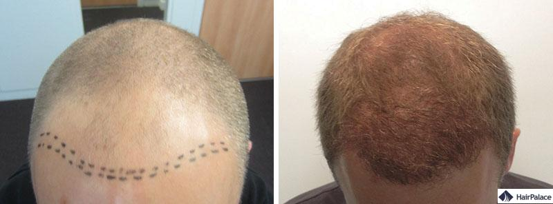 Haartransplantation vorher nachher - Sylvain