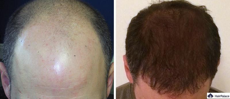 Haartransplantation vorher nachher - Tom