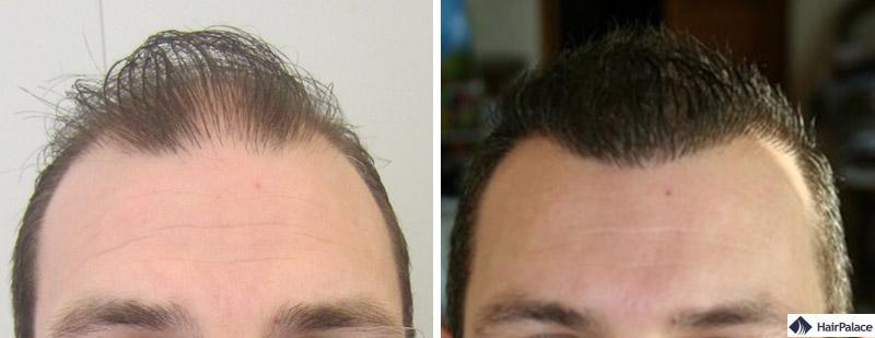 Haartransplantation vorher nachher - Yannick