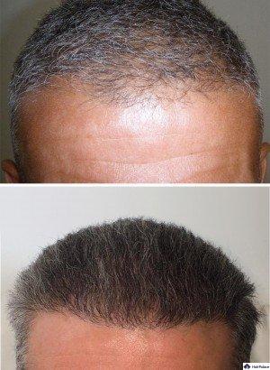 Billige haartransplantation kosten