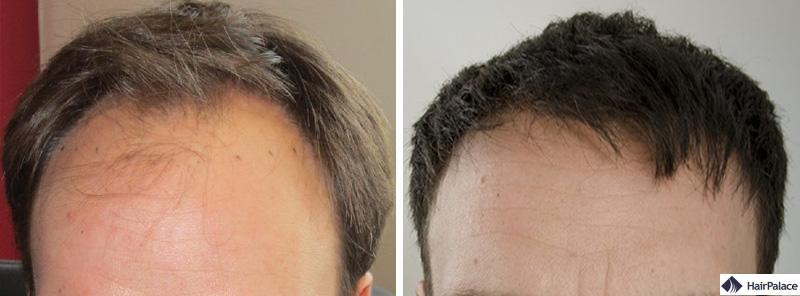 Haartransplantation vorher nachher - Christophe