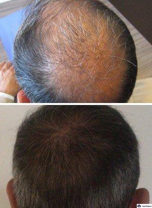 FUE haartransplantation Alexandre