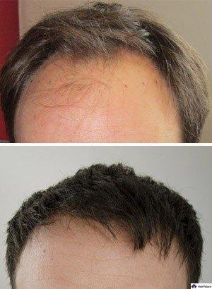 Haartransplantation Christophe