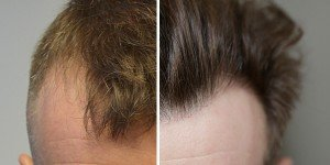 Haartransplantation referenzen