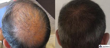 Haare implantieren