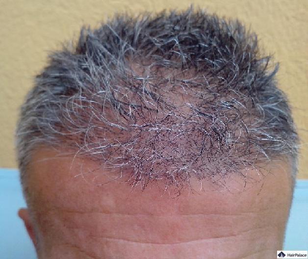 eine Woche nach der Haartransplantation