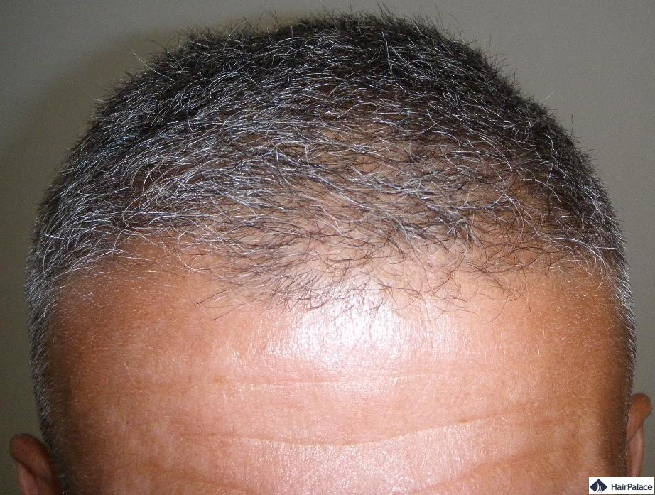 Bild vor der Haartransplantation