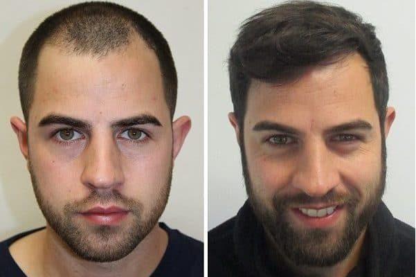 Chris vorher nachher der Haartransplantation
