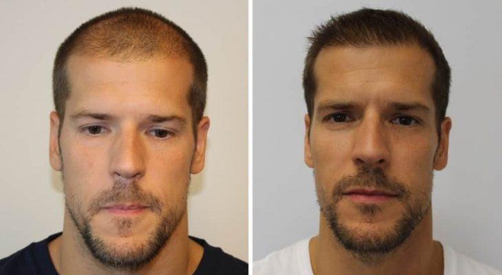 Sam vor und nach der Haartransplantation