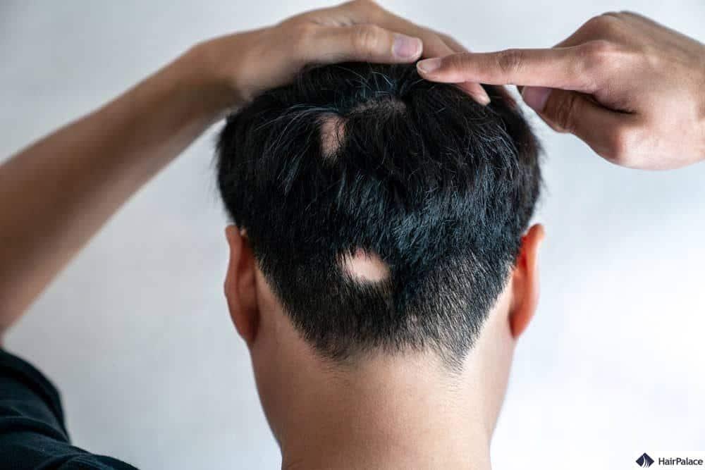 alopecia-areata-4541839