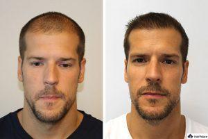 hair-transplant-in-budapest-300x200-2342241