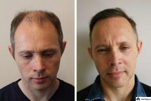 hair-transplant-in-switzerland-300x200-3572054