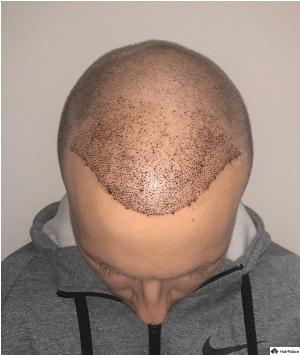 1-woche-nach-dem-haartransplantation-jon
