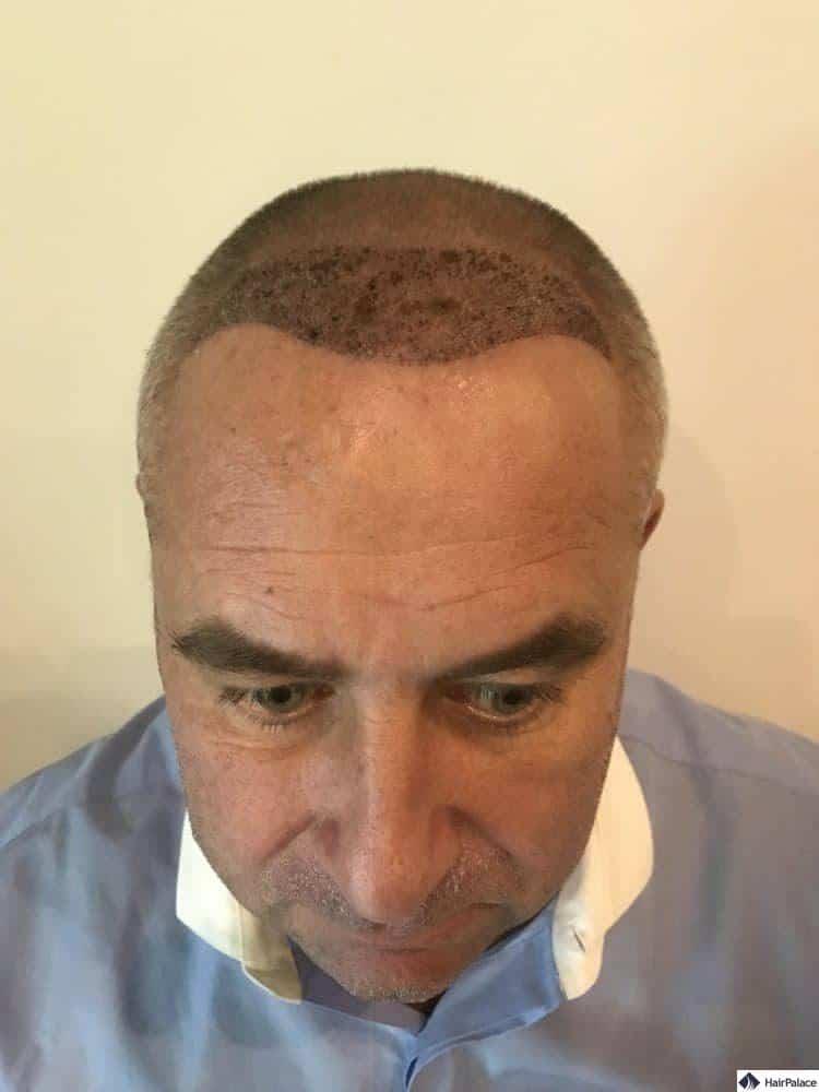 Francks Haaransatz 1 Woche nach der Haartransplantation