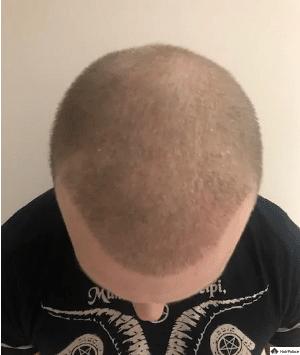 2-wochen-nach-der-haartransplantation-jon