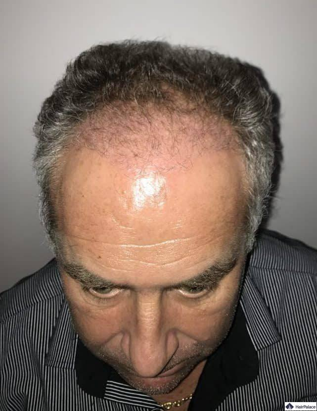 Francks Haaransatz 3 Monate nach der Haartransplantation