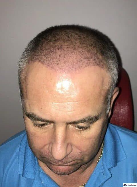 Francks Haaransatz 3 Wochen nach der Haartransplantation