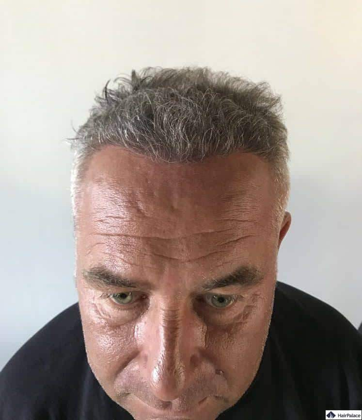 Francks Haaransatz 6 Monate nach der Haartransplantation