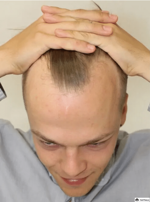 bartlomiej-vor-der-haartransplantation
