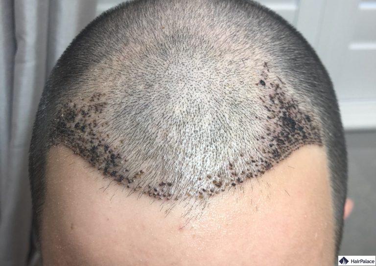 chris-1-woche-nach-der-haartransplant
