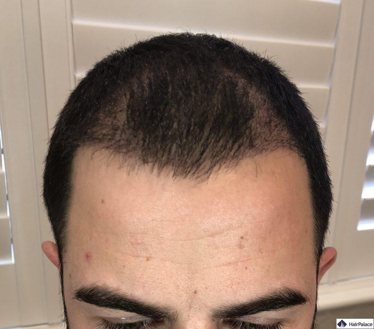 Chris' Haaransatz 3 monate nach der Transplantation