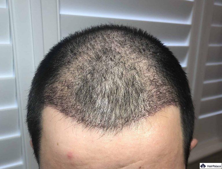 Chris Haaransatz 3 Wochen nach der Haartransplant