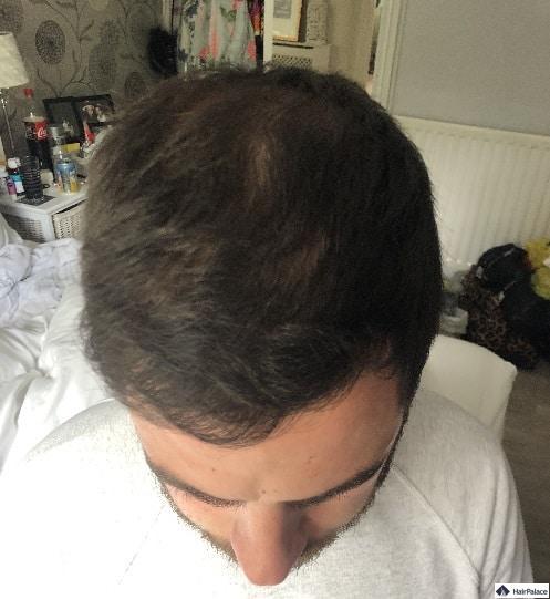 Chris' Haare 6 Monate nach der Implantation