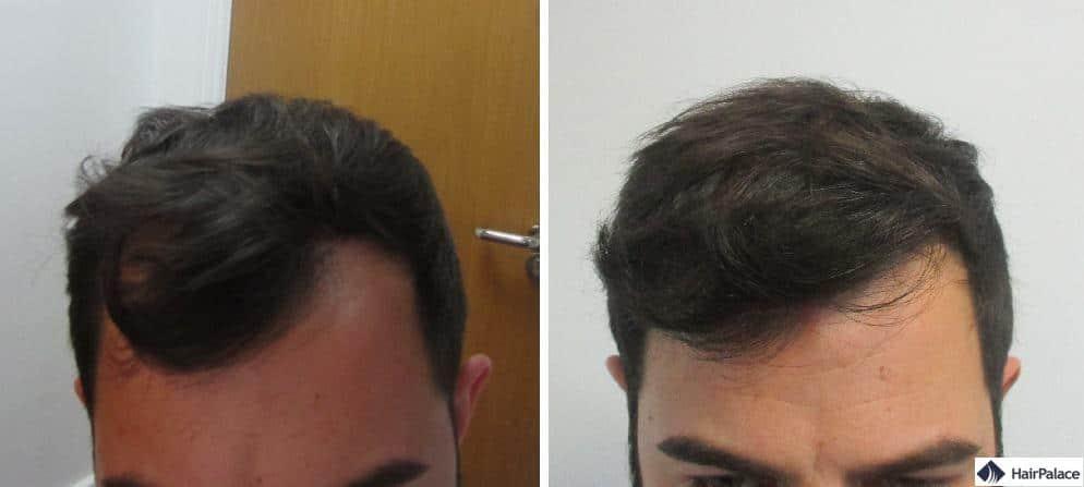 Chris Haaransatz vor und nach der Haartransplant