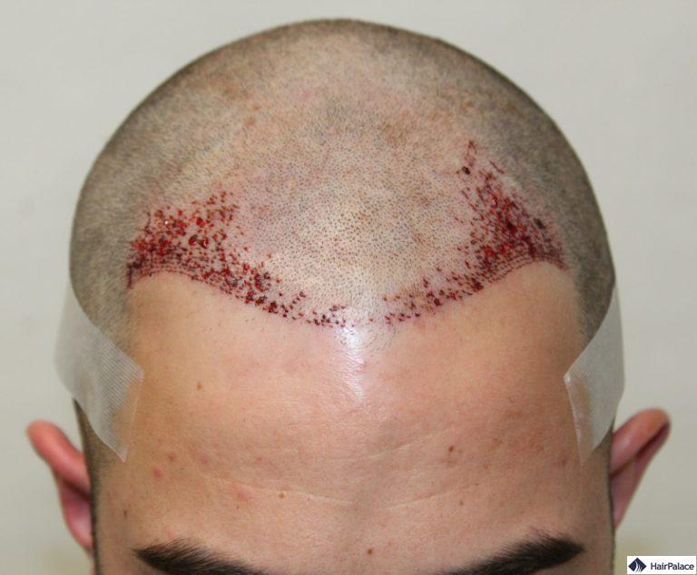 Chris Haaransatz nach der Haartransplant