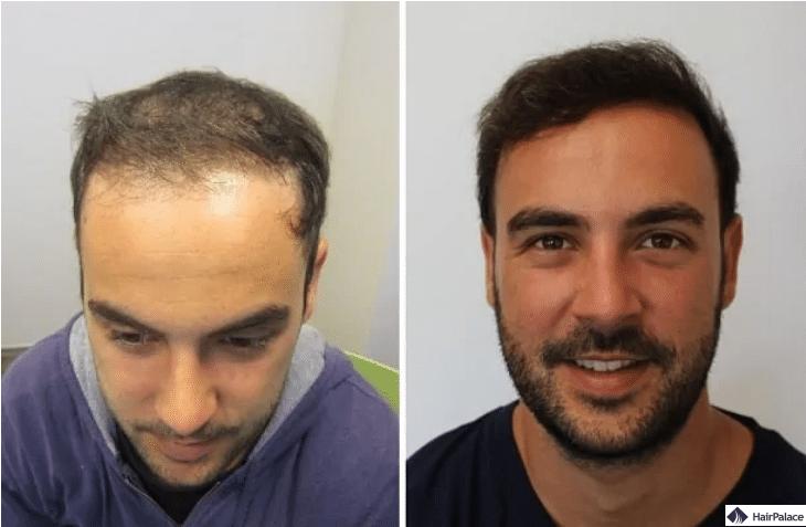 cyrils-haarkorrektur-nach-haartransplantation-1