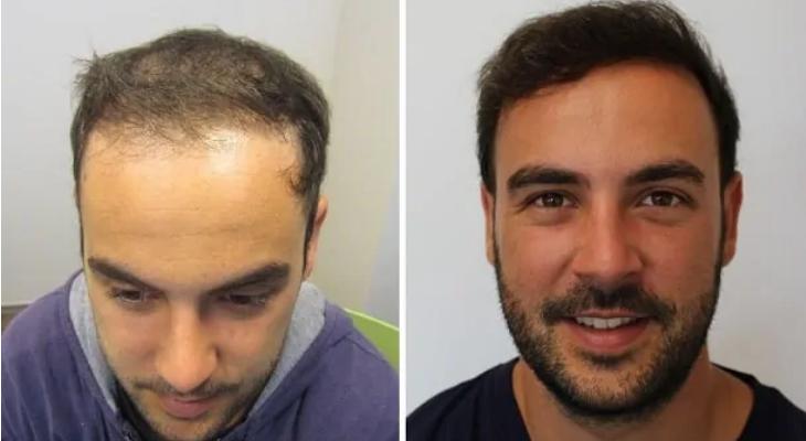 cyrils-haarkorrektur-nach-haartransplantation
