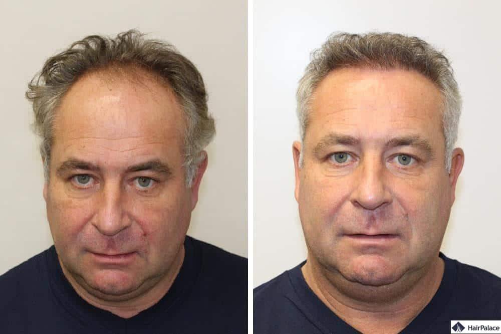 Francks Haaransatz vor und nach der Haartransplantation