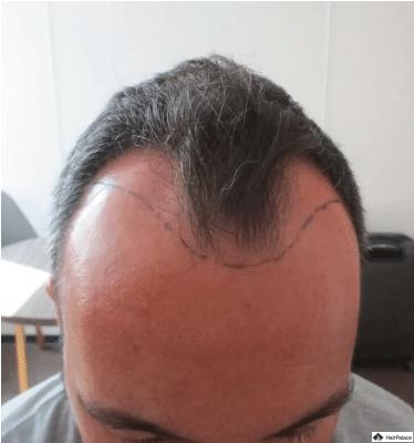 jerome-beratung-zu-haarimplantaten