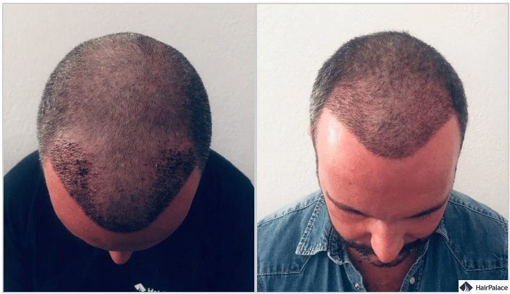jerome-haarimplantation-1-woche-und-3-wochen-spaeter