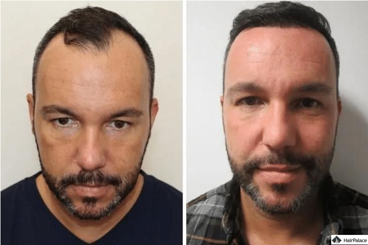 jerome-vor-und-nach-der-haarimplantation-1