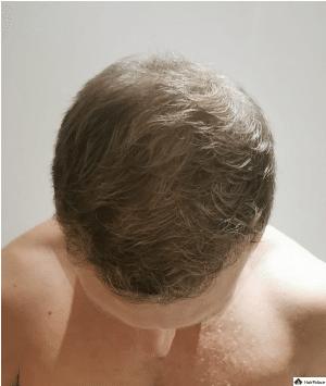 jon-6-monate-nach-der-haartransplantation-1