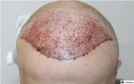 jon-implantierter-bereich-nach-abschluss-des-eingriffs
