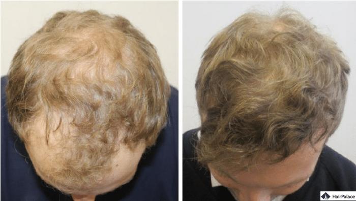 jons-haartransplantation-transformation