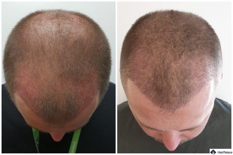 neil-3-wochen-3-monate-nach-haartransplantation