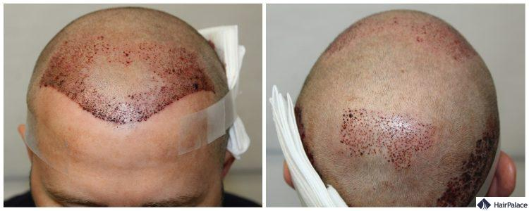 neil-dichte-haartransplantation