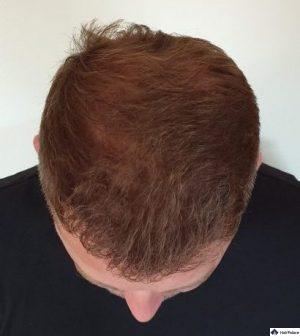 neil-implantiertes-haar-6-monate