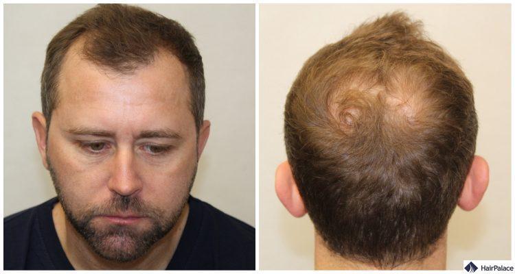 neil-in-consultation-haartransplantation