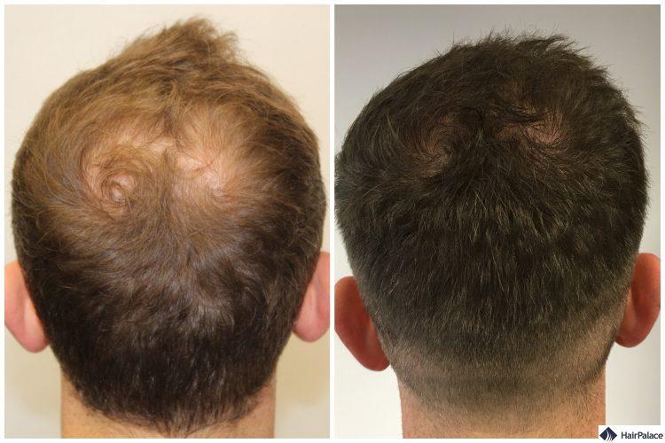 neil-vor-nach-haartransplantation