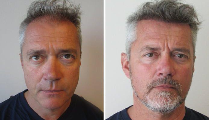pascals-zweite-haartransplantation-mit-6000-implantierten-haaren